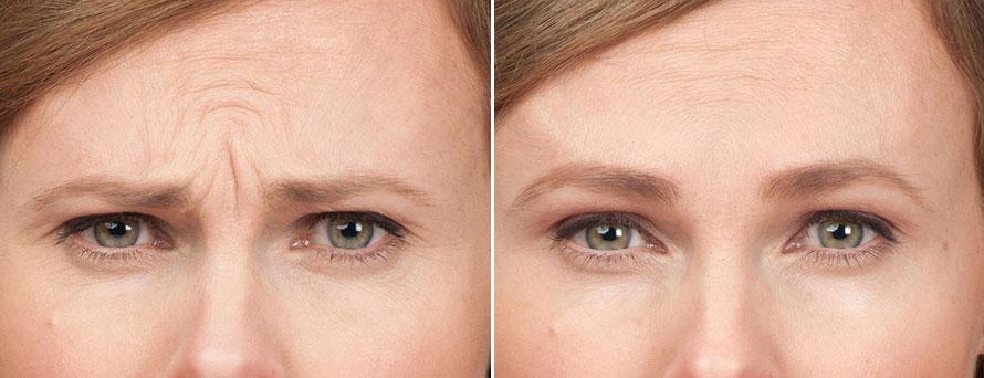 """Képtalálat a következőre: """"botox előtte utána"""""""